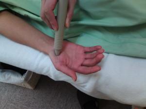 ソフトレーザー鍼治療器による手、指の治療の写真